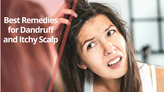Best Remedies for Dandruff and Itchy Scalp